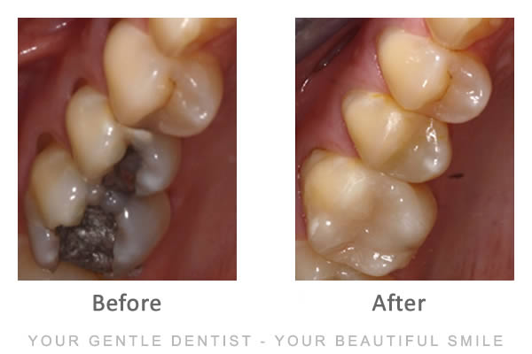 Dr Jasmine Piran - Composite Fillings