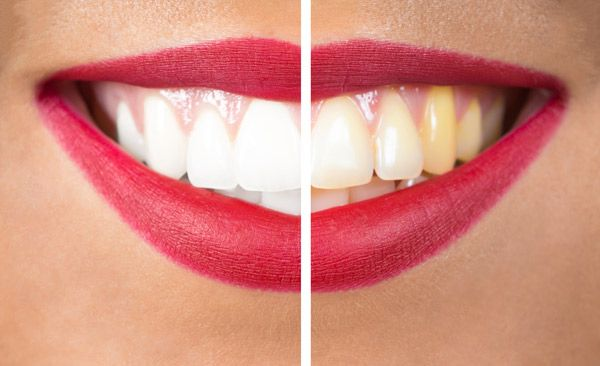 Dr Jasmine Piran - Teeth Whitening