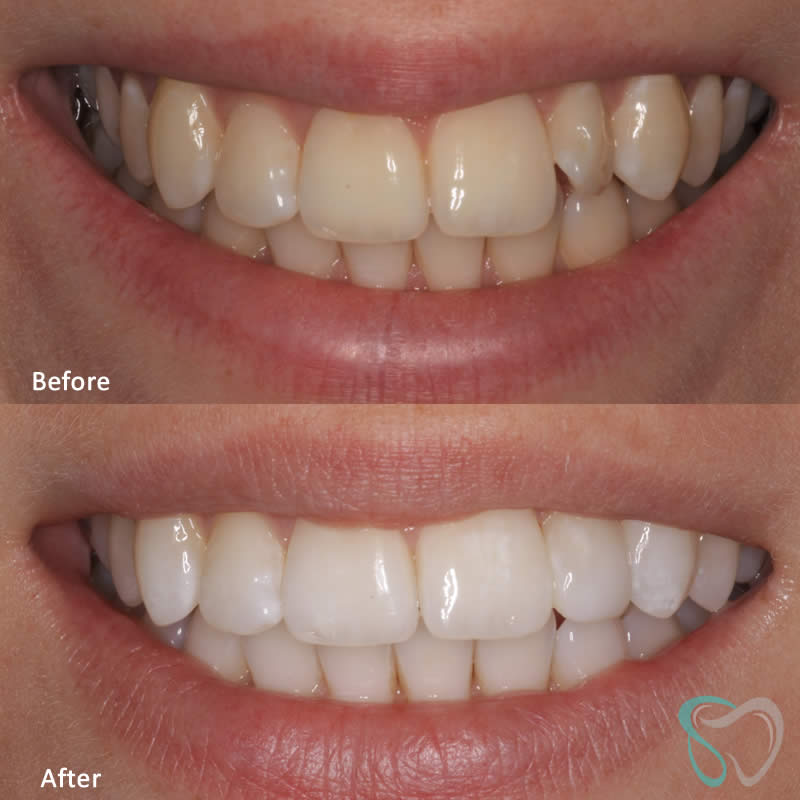 Dr Jasmine Piran - Smiles by Jasmine